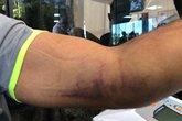 Situação do cotovelo de Henríquez após jogo com o Inter (Foto: Reprodução/Vasco.com.br)
